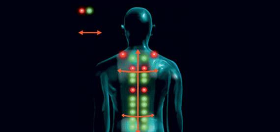 Автоматическое определение биологически-активных точек Шиацу